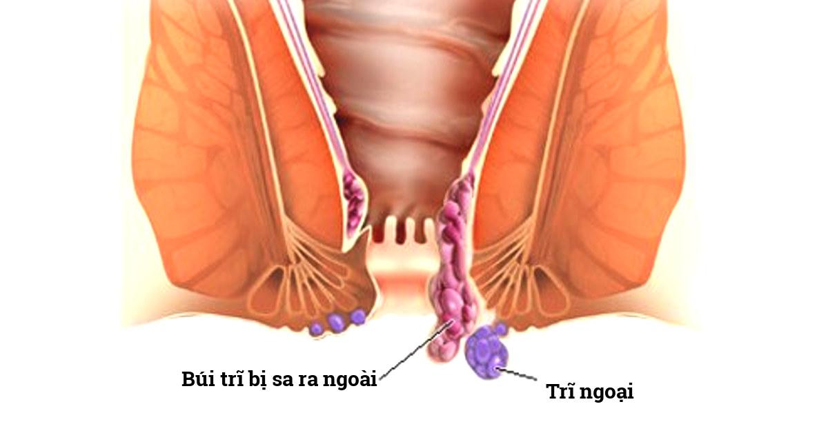 búi trĩ nội bị sa ra ngoài hậu môn