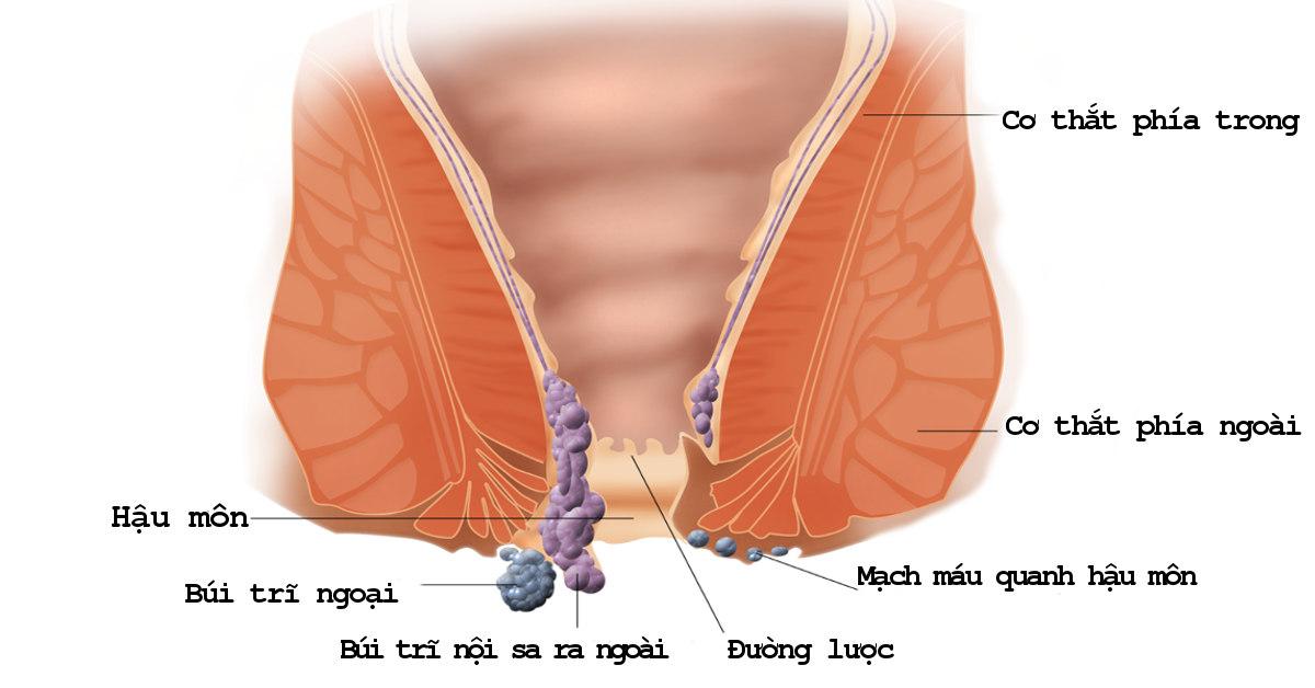 trĩ nội và trĩ ngoại