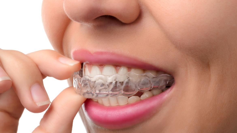 Image result for niềng răng mắc cài mặt trong