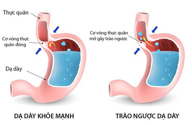 Trào ngược dạ dày thực quản: Triệu chứng, nguyên nhân và điều trị bệnh