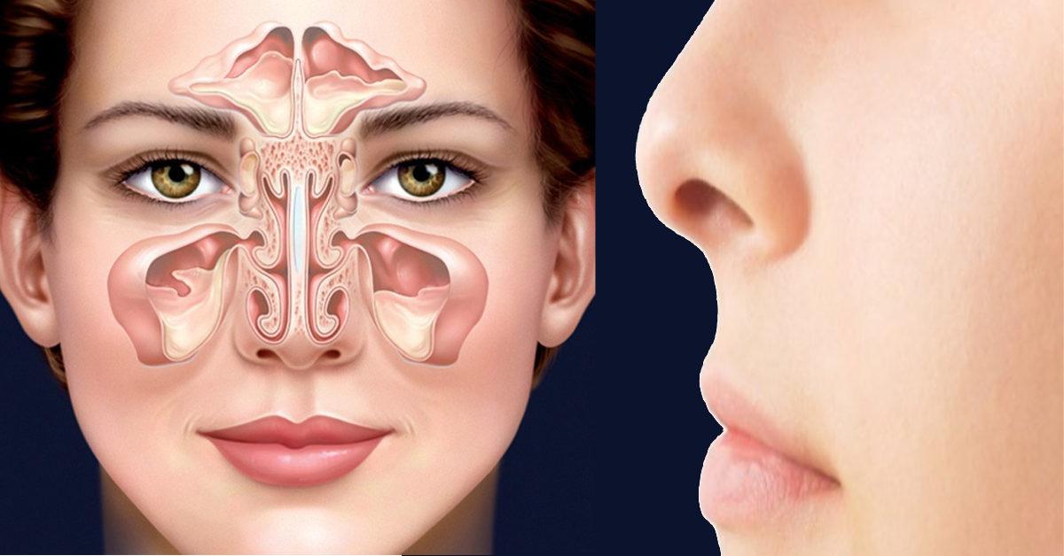Bệnh viêm xoang mũi cấp tính khám và điều trị ở đâu tốt