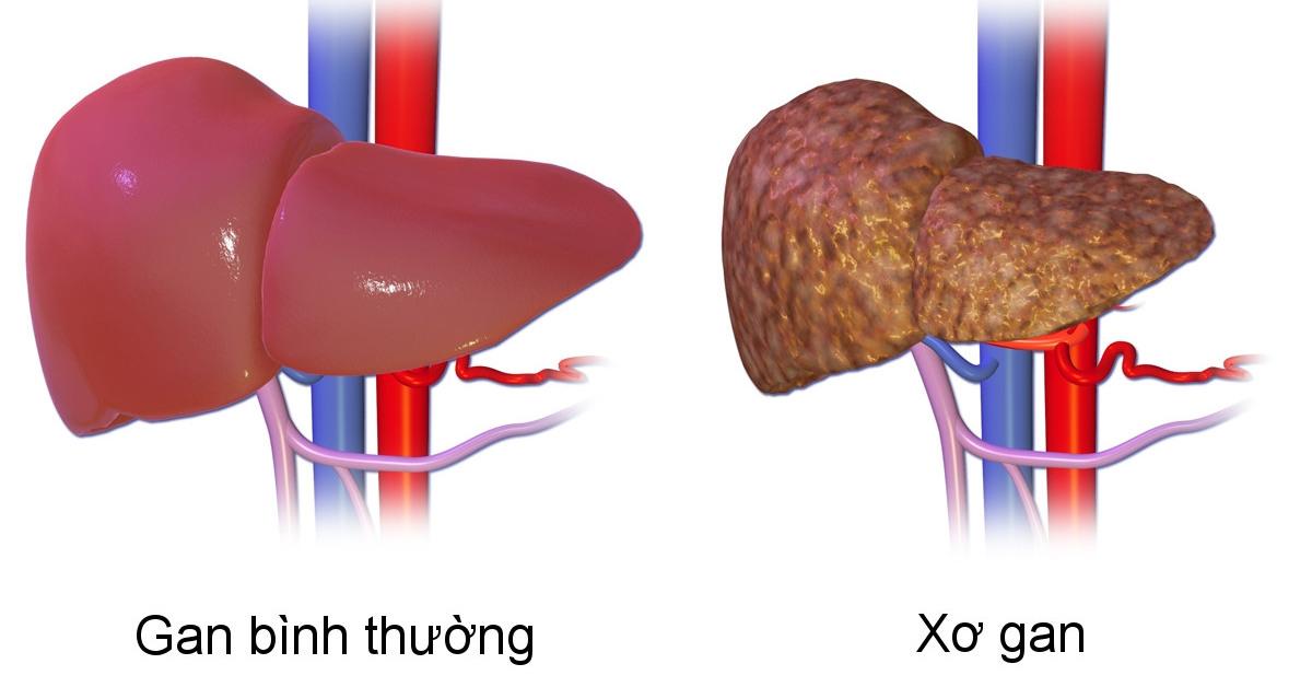 Biến chứng nguy hiểm của bệnh xơ gan? Cách điều trị hiệu quả