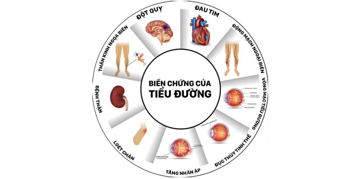 6 Triệu chứng bệnh Tiểu đường (đái tháo đường) và Chế độ ăn uống phù hợp