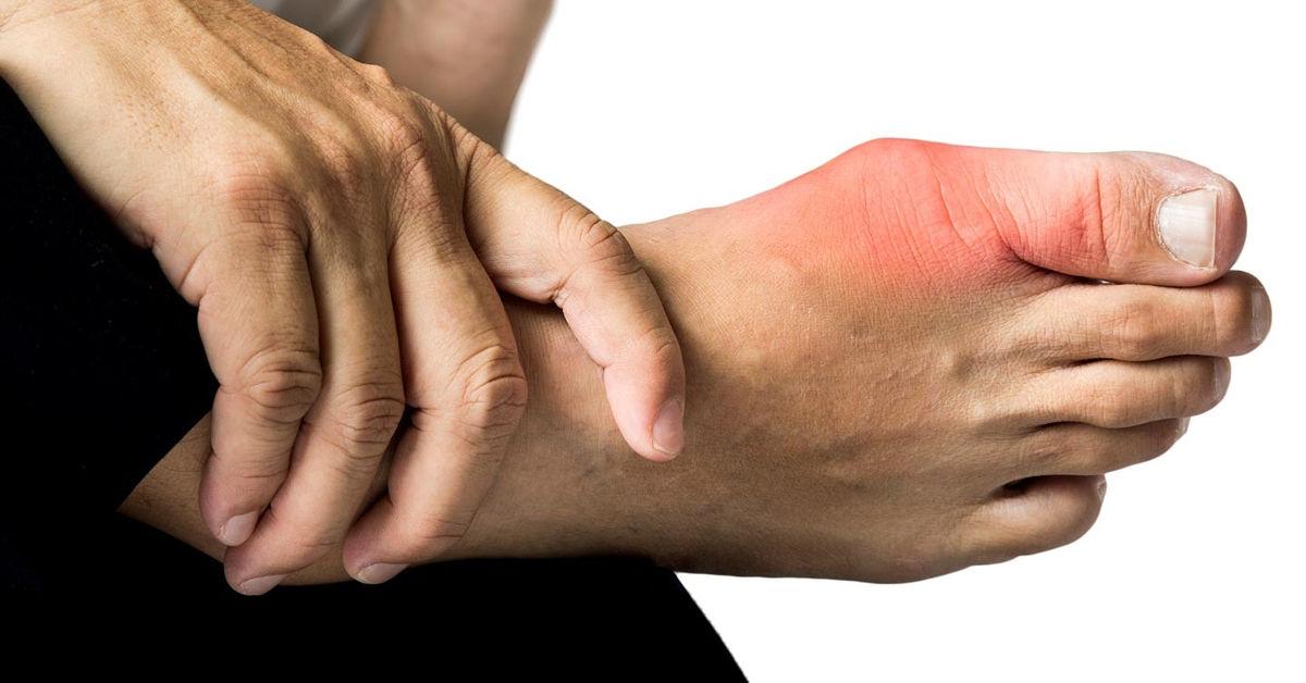 bệnh gout ở chân