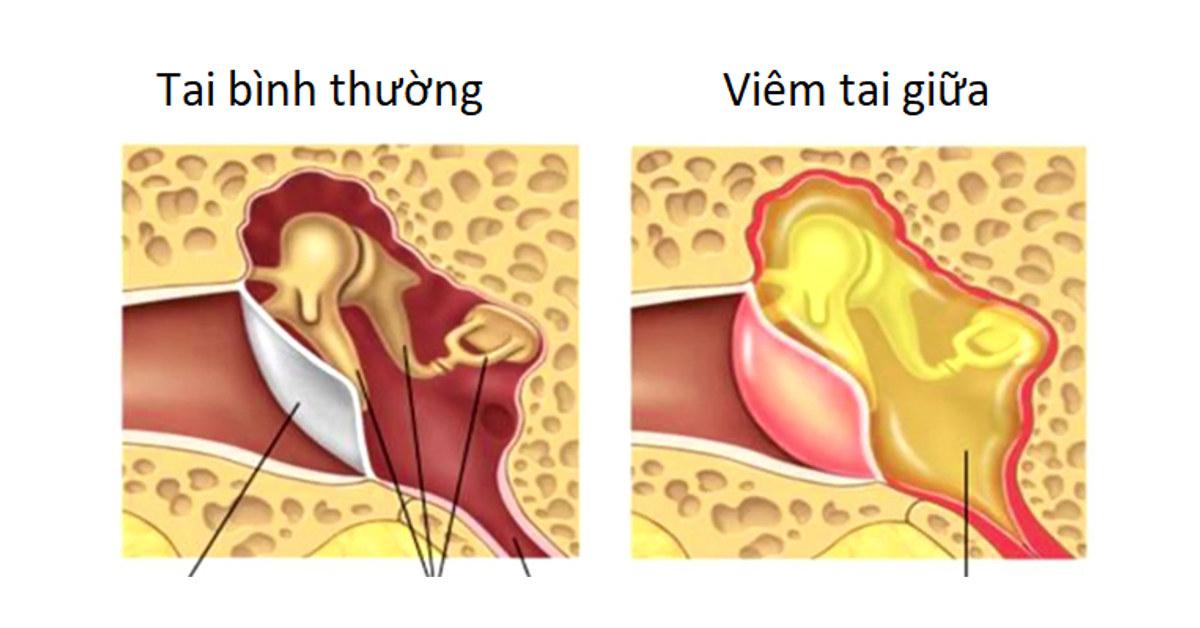 Cách chữa trị Viêm tai giữa ở trẻ em và những sai lầm thường gặp